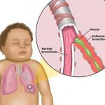 Bronchiolitis_anatomy