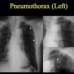 Pneumothorax and Chest Tube Refresher