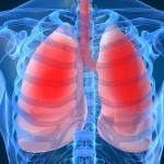 Lung Volume Reduction Surgery Shown To Prolong And Improve Life For Some Emphysema Patients