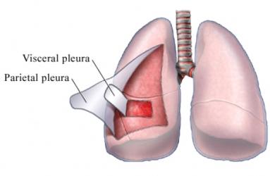 What Is Pleurisy? What Causes Pleurisy?