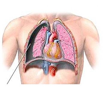 Chest Tubes Refresher