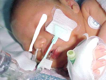 Neonatal ETT size cheat sheet