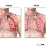 hemo-pneumothorax