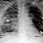 x-ray chest tube port outside