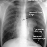 x-rayTensionPneumo