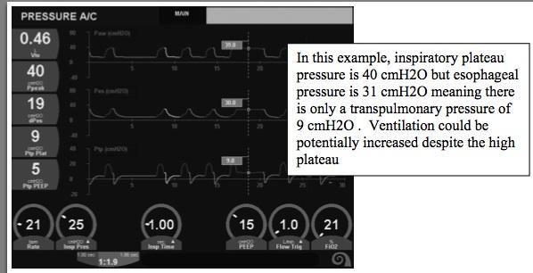 Esophageal Pressure Monitoring in Ventilation