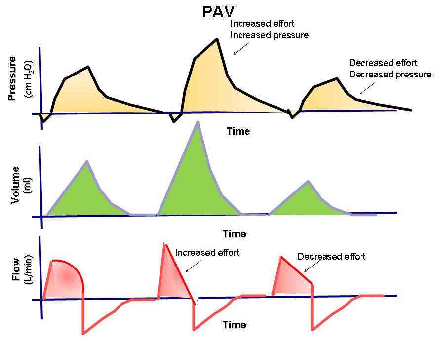 Physiologic Response of Ventilator-dependent Patients with Chronic Obstructive Pulmonary Disease to Proportional Assist Ventilation and Continuous Positive Airway Pressure