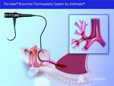 New Asthma Treatment Makes Breathing Easier