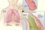 Bronchiectasis Guideline