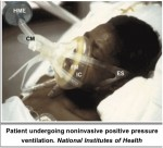 New Clinical Practice Guidelines Issued for Noninvasive Ventilation