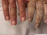 Methemoglobinemia Clinical Presentation