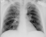 Excellent CXR information site from YALE