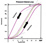 Optimal PEEP Guided by Esophageal Balloon Manometry