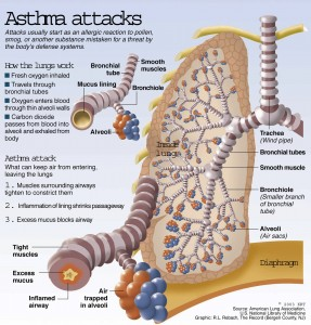 pathology asthma