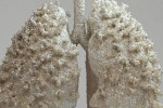 Journal of the American Medical Association : COPD best treated with COMBO